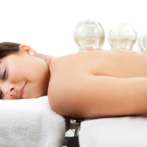 Female Receiving Acupuncture Cupping Treatment